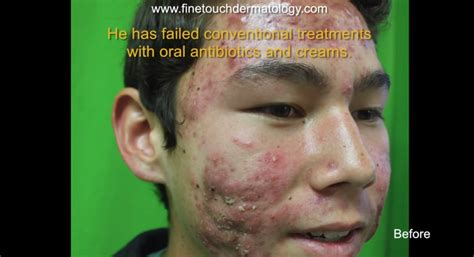 fraxel for acne scars picture 5