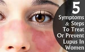 lupus acne picture 7