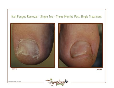 toe fungus removal by laser in az picture 8