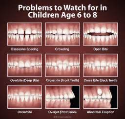 baby teeth problems picture 6