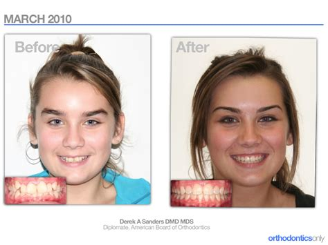 align of h after braces picture 9