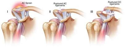 ac joint pain picture 6