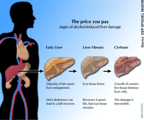 fatty cirrhosis of the liver picture 13