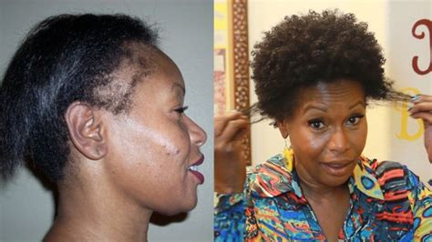 african american hair and stopping thinning edges picture 11