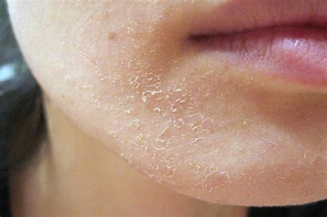 dry lips and skin picture 9