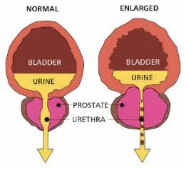 enlarged prostate icd 9 code picture 1