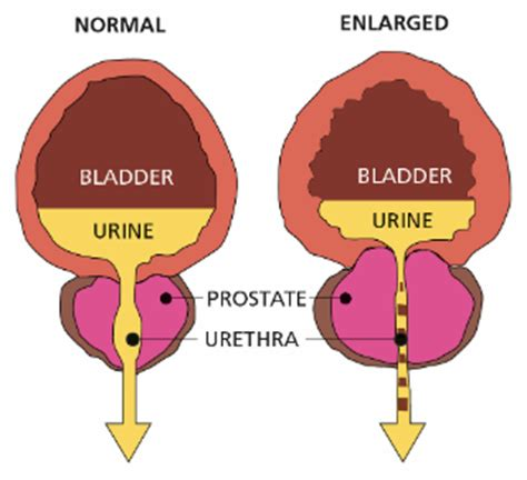 icd 9 codes for enlarged prostate picture 13