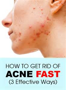 how to get rid of acne picture 1