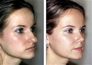 taking dietrine after rhinoplasty picture 14