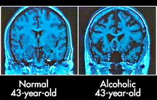 effects of impaired liver function upon the brain picture 11