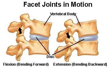 luschka joint arthropathy picture 6