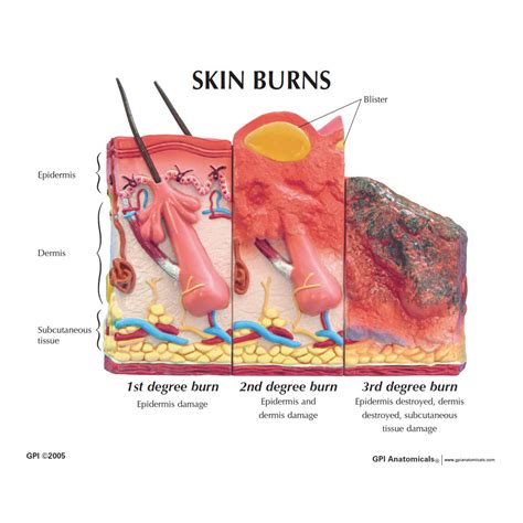 skin burn picture 2