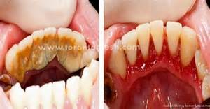 flu teeth discoloration picture 2