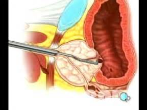 Prostate procedures picture 13