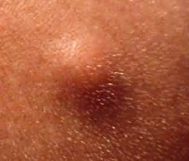 keratin cyst picture 5