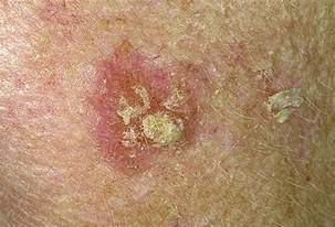 lesions picture 11