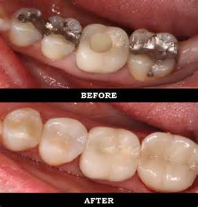crowns on teeth picture 2