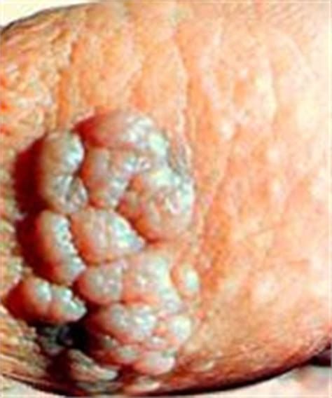 genital warts for men pictures picture 6
