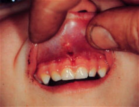 children and trauma to teeth picture 10