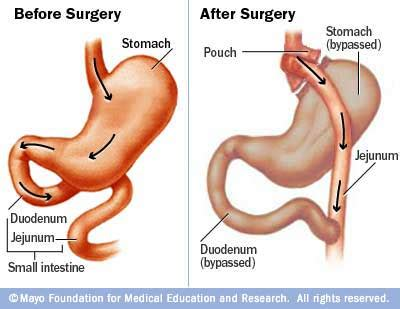 to much weight loss after baratric surgery picture 1