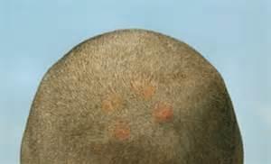 pimples scalp cholesterol picture 9