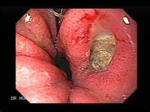 ulcers in stomach and lipo picture 11