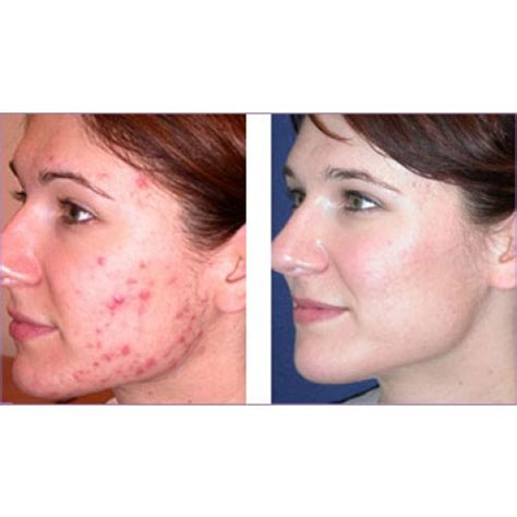 consumers acne scars thermage picture 2