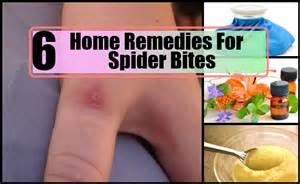spider bite home remedy picture 18