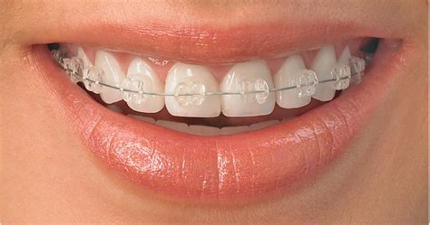 clear teeth brace picture 1