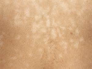 toddler white spots on skin picture 1