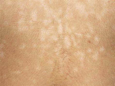 infant h white spots picture 10