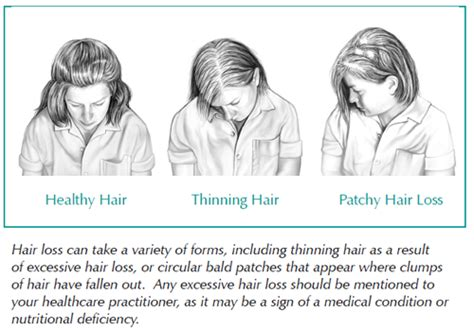 hair thining due to hyperparathyroidism picture 3