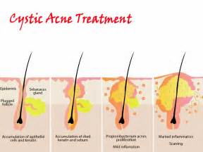 how can i stop cystic acne without drugs picture 1