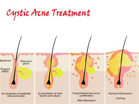 cystic acne how to prevent picture 19