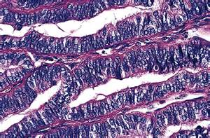 cancer cell hurtle papillary thyroid variant picture 11