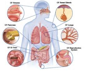 intestinal infection picture 10