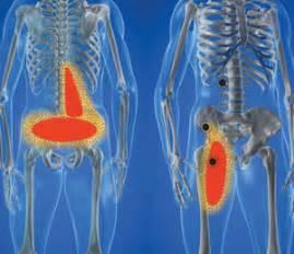 hip flexor injury symptoms picture 9