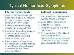symptoms of hemorrhoids picture 10