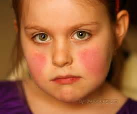 skin diseases on children picture 11