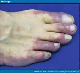 low blood presure purple feet picture 7