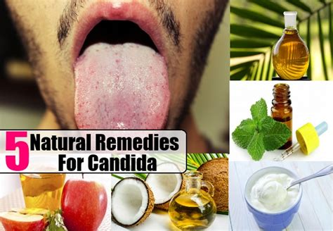 a herbal tea to cure candida picture 1
