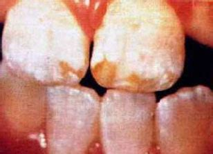 flouride bad for teeth picture 14