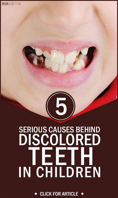 discolored teeth in children picture 2