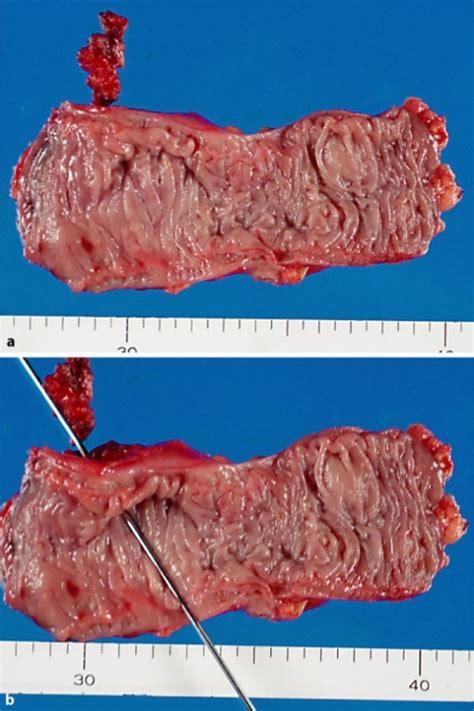 colon fistula surgery picture 17