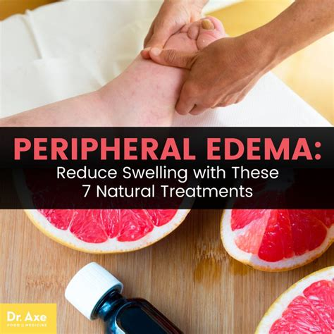 natural remedies to reduce pleural fluid picture 8