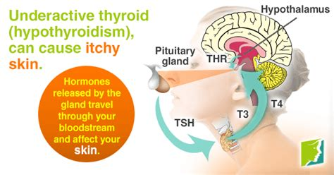 thyroid problems and thickened skin picture 11