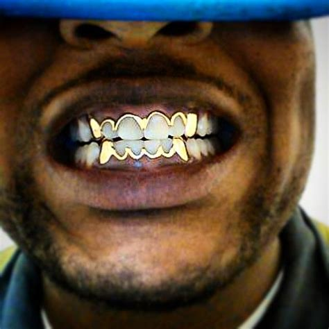 finance me gold teeth picture 19