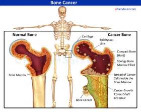 how long does prostate cancer stay in bones picture 6