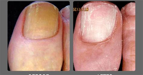 nail fungus laser az picture 7