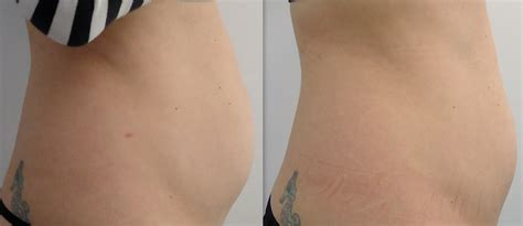 belly fat removal cream picture 6